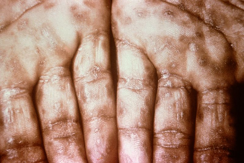 Secondary_Syphilis_on_palms_CDC_6809_lores.rsh