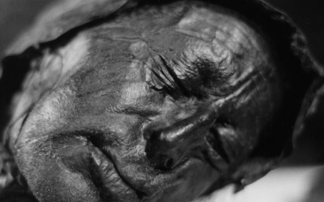 10 Amazingly Mysterious Bog Bodies