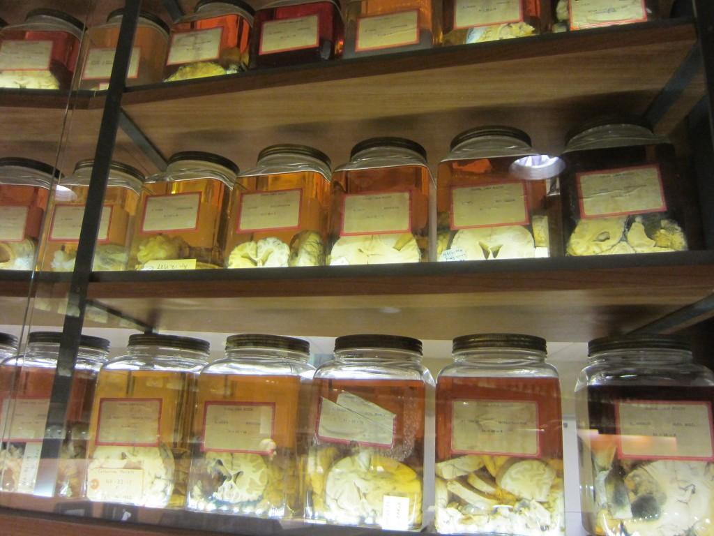 brains in jars