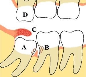 Lower_mandibular_third_molar_impaction_pericoronitis_diagram vestigial