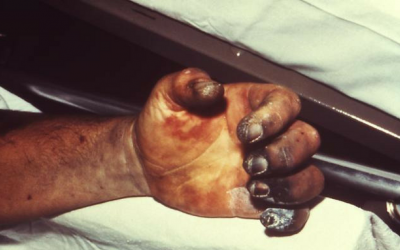 10 Deadliest Epidemics In History